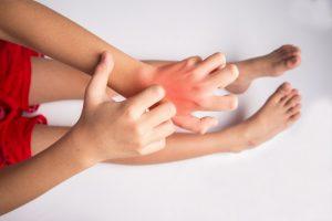 Do Allergies Develop Before Birth?