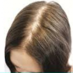Few Myths and Facts about Hair Loss!