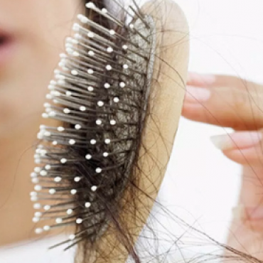 5 Amazing Tips to Prevent Hair Loss