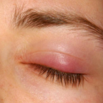 Few Effective Home Remedies For Chalazion