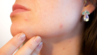 Connection between Oily Skin & Acne