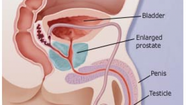 Can an Enlarged Prostate (BPH) Affect Your Bladder?