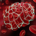 Know What Triggers Blood Clotting