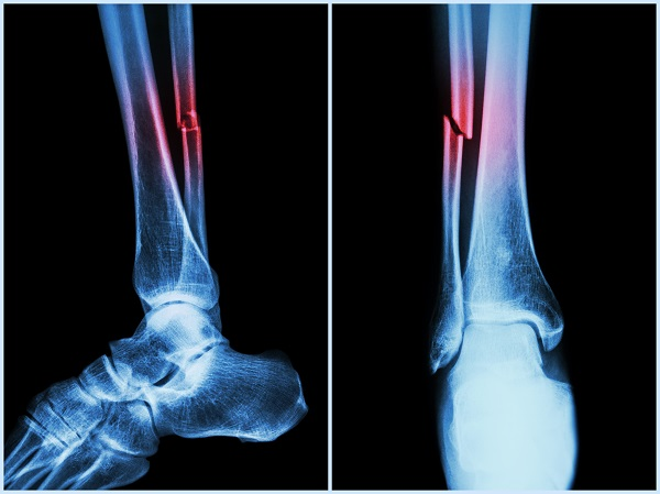 5 Tips to Prevent Bone Fractures