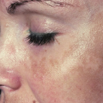 How to Get Rid Of Melasma?