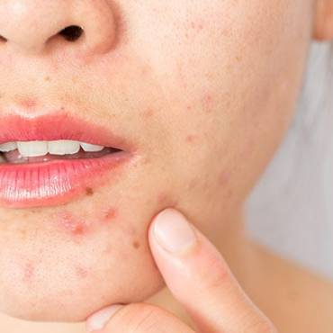 How to Get Rid of Chin Acne?
