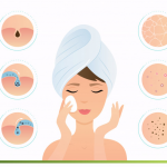 Effective Home Remedies for Acne