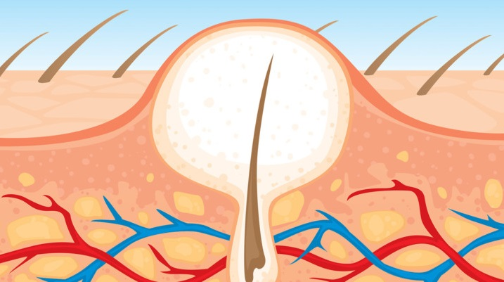 fungal-acne.jpg