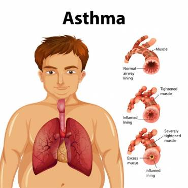 Asthma Triggers and What to Do About Them