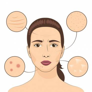 How to Get Rid of Acne Scars, According to Dermatologists?