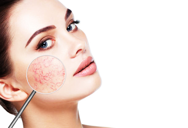 Top 10 Tips for Relieving Dry Skin