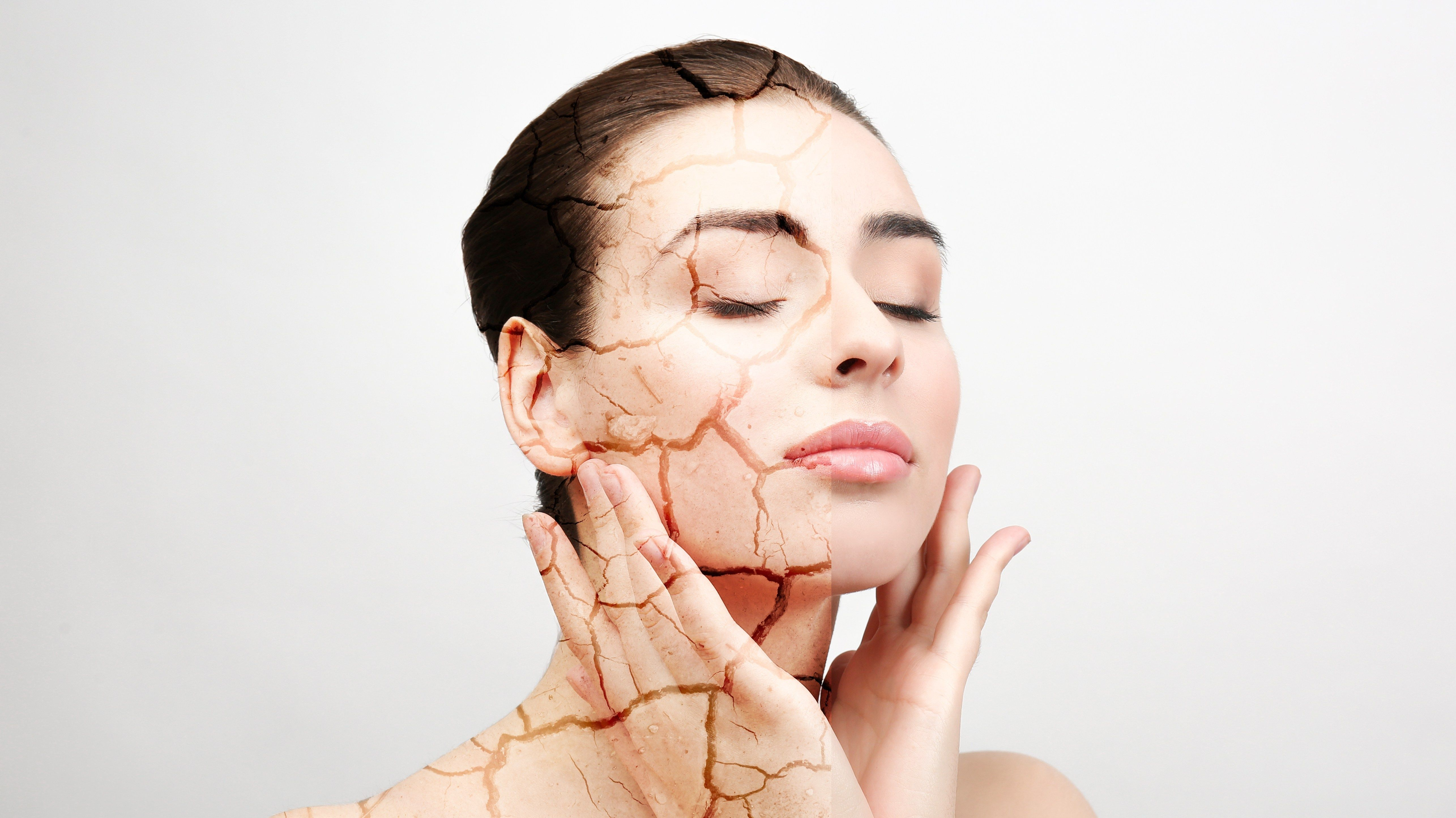 Top 10 Tips for Relieving Dry Skin Image 2